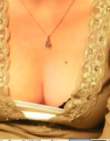 Breast Enlargment (Video Tuturial)